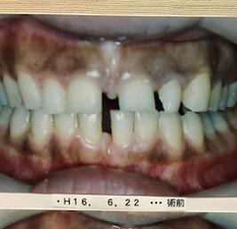 包括的歯科治療 事例1