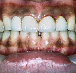 包括的歯科治療 事例2