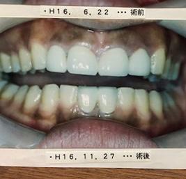 包括的歯科治療 事例3