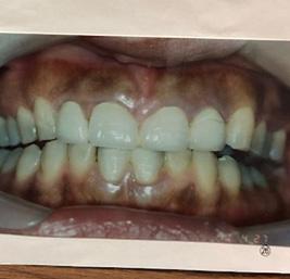 包括的歯科治療 事例4